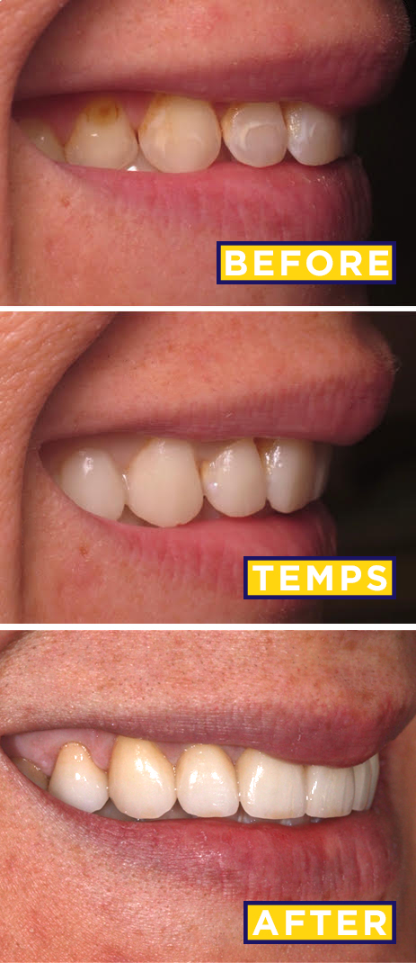 Veneers Before After The Decision The Prep The Results