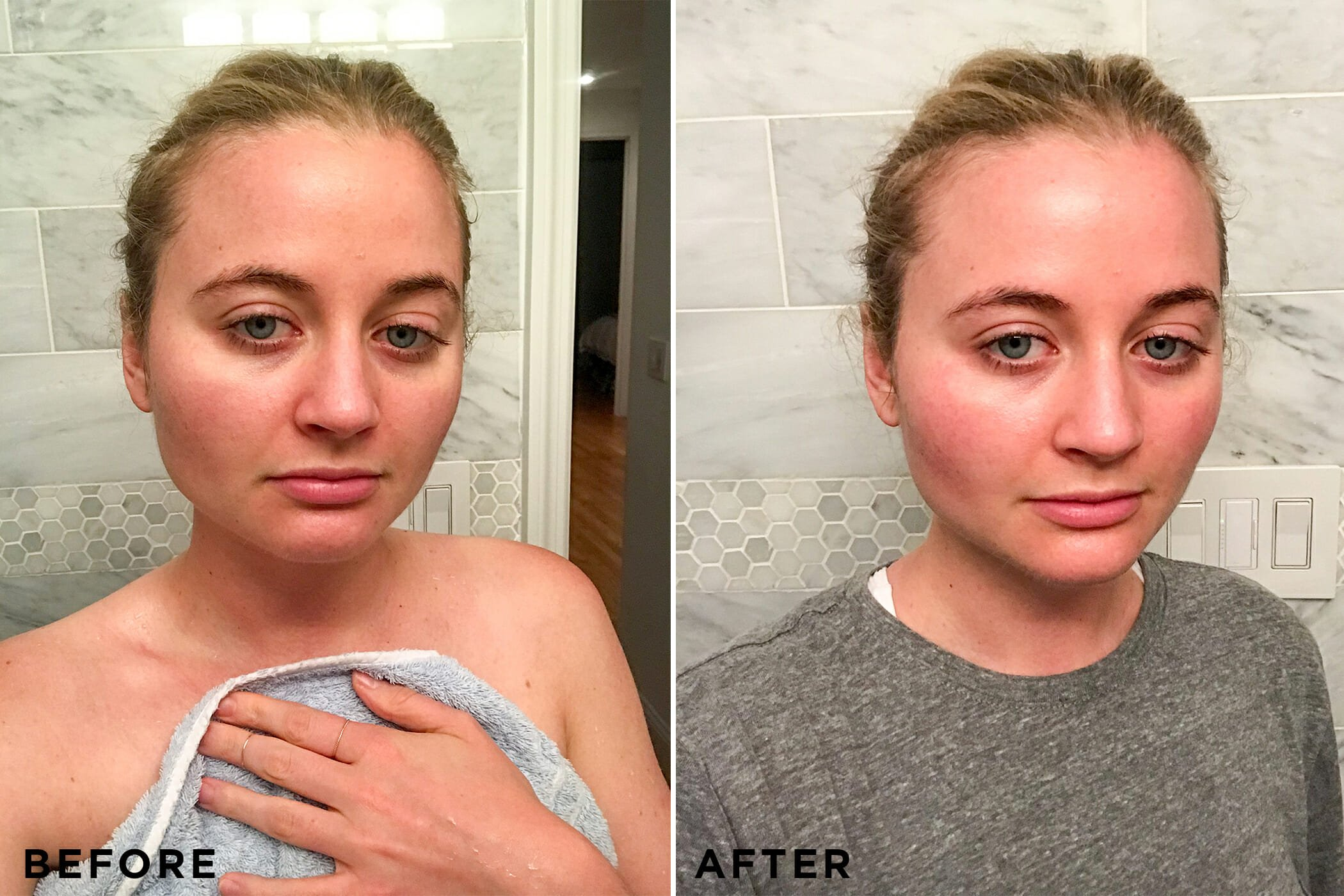 I Tested 6 Of The Best Redness Reducing Skincare Products